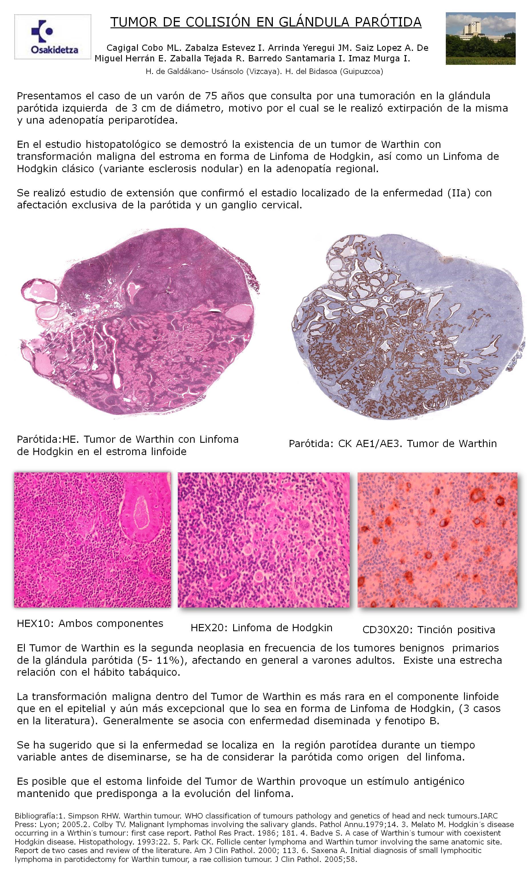 PosterXXXVSEAP013 - Tumor de colisión en glándula parótida