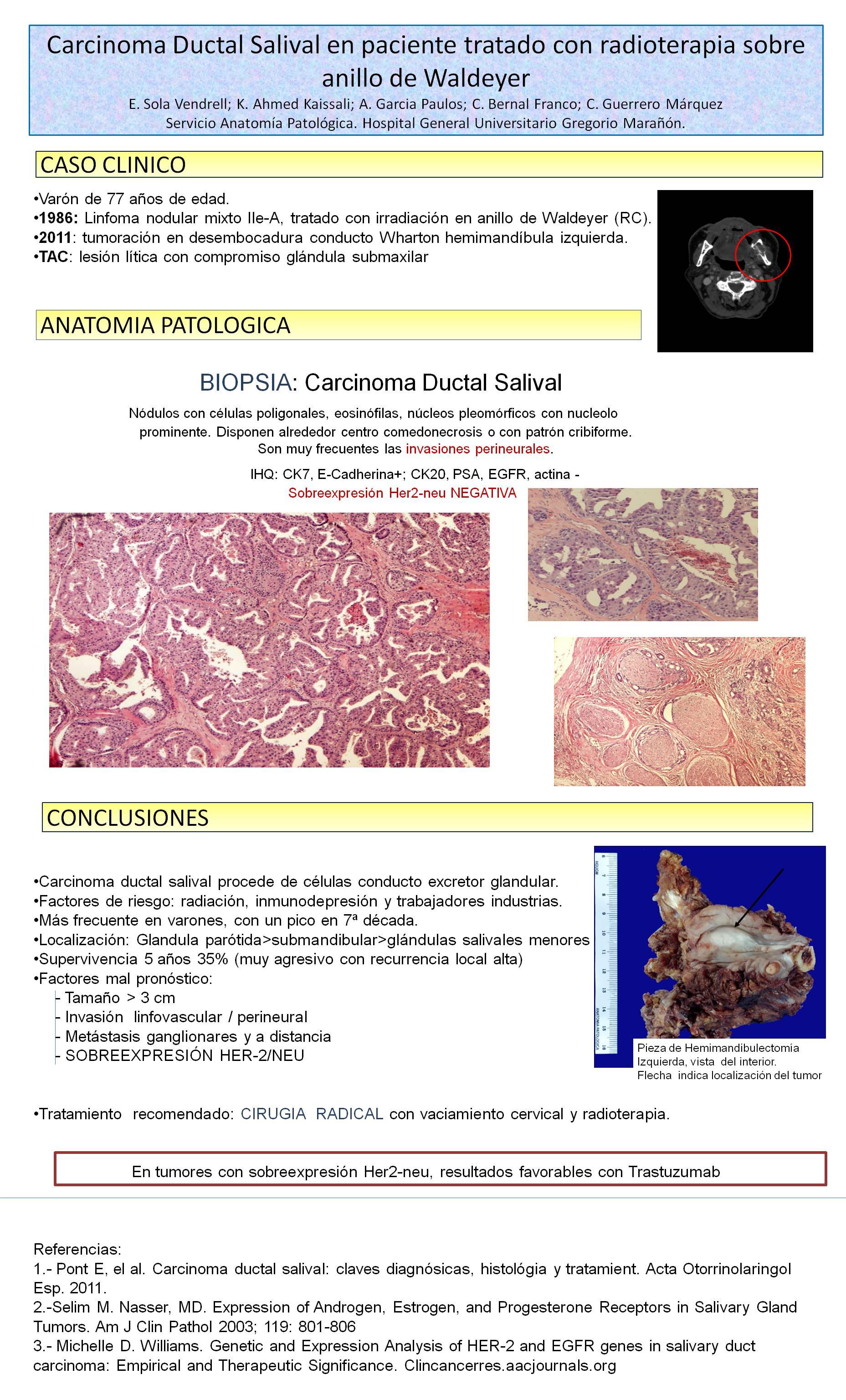 PosterXXXVSEAP018 - Carcinoma ductal salival en paciente tratado con radioterapia sobre anillo de Waldeyer