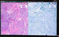 Simposio satelite de Patología Digital