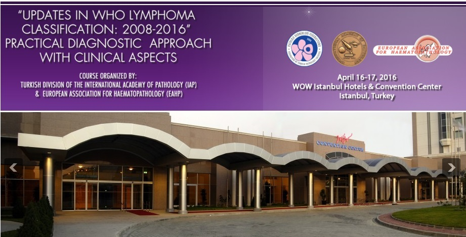 """Updates in WHO lymphoma classification: 2008-2016"" Practical diagnostic approach with clinical aspects"
