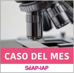 #CasodelMes Mayo 2021
