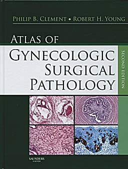 Atlas of Gynecologic Surgical Pathology