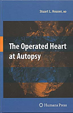 The operated heart at autopsy