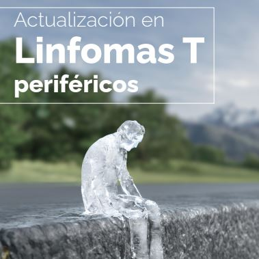 Actualización en Linfomas T periféricos